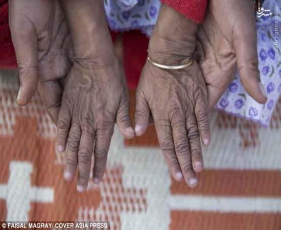 عکس/ بیماری عجیب و غریب خواهر و برادر خردسال هندی