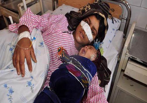 یک عضو گروه طالبان بینی همسرش را برید + تصویر