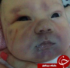 کنده شدن بخشی از سر و جمجمه نوزاد حین زایمان طبیعی + تصاویر