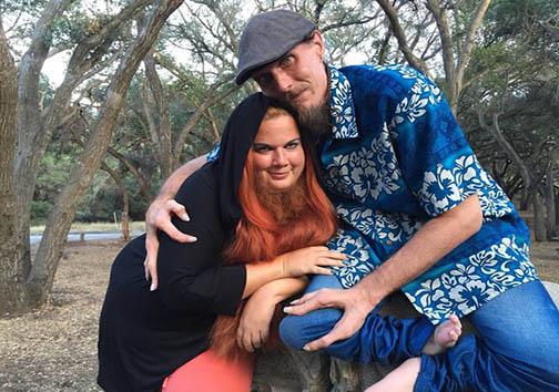 ازدواج مرد خرچنگی و زن ریشدار + تصاویر