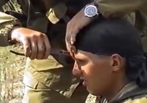 خارج کردن گلوله از پیشانی سرباز زنده با انبردست + عکس و فیلم