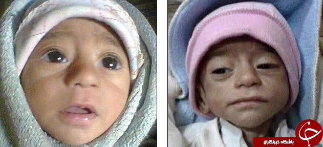 تصاویر تکان دهنده قبل و بعد کودکان سوری