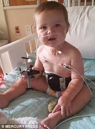 بلعیدن باتری لیتیوم گلوی کودک نوپا را آتش زد + تصاویر
