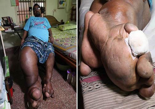 مردی با پاهایی بهاندازه وزن یک بچه فیل + تصاویر