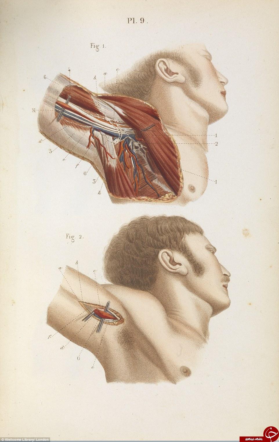 تصاویری ترسناک از اعمال ابتدایی جراحی در قرون گذشته