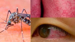 جدی شدن شیوع ویروس خطرناک زیکا