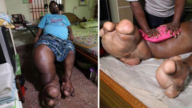 مردی که وزن پاهایش برابر یک وزنه 100 کیلویی است+ تصاویر