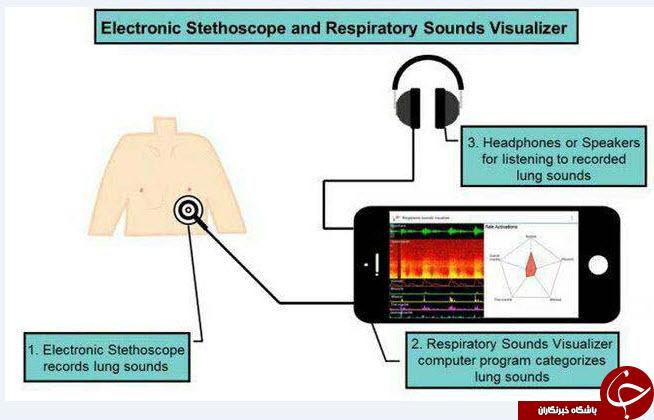 تشخیص بیماری تنفسی از طریق سامانه الکترونیکی +عکس