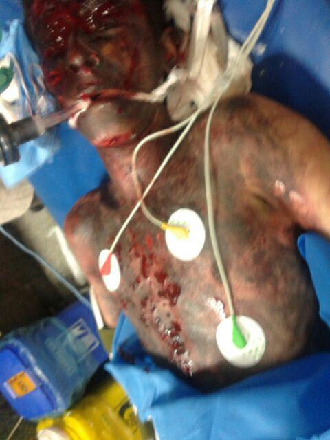 انفجار مواد محترقه دو دست نوجوان کرمانشاهی را قطع کرد + تصاویر (18+)