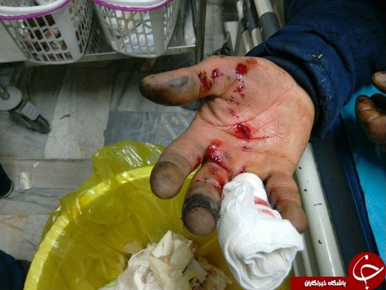 اولین قربانی چهارشنبه سوری در رباط کریم جان سپرد/ قطع دست پسر جوان در مراغه/وقوع 107 حادثه در پایتخت