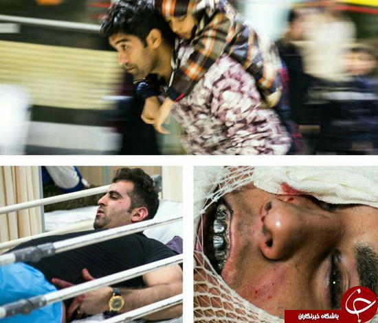 برخورد نارنجک به صورت مامور نیرو انتظامی پایتخت/اولین قربانی چهارشنبه سوری در رباط کریم جان سپرد+تصاویر