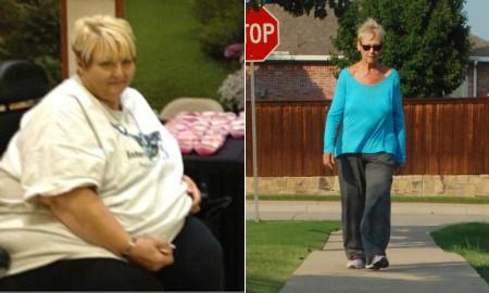 رکورد داران وزن کم کردن را بشناسید +تصاویر