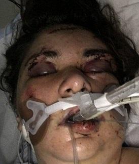 ضرب و شتم دختر مورد علاقه تا سرحد مرگ در شب تولدش/دختر جوان به کما رفت+تصاویر
