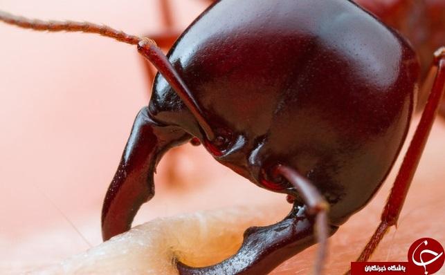 لحظه گاز گرفتن مورچه از انسان +تصاویر