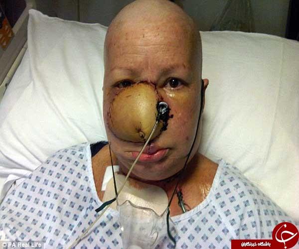 مجله سلامت کارسینوم سلول سنگفرشی علایم سرطان دهان سرطان دهان