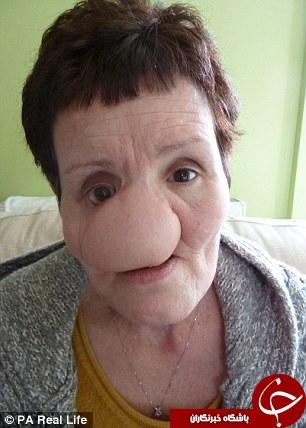 تصاویری هولانگیز از نابودی چهره دراثر سرطان دهان