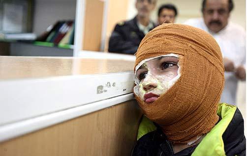 چهارشنبه سوری؛ زندگی به قیمت یک لحظه شادی/هزینه 2 میلیارد تومانی تخت سوختگی!