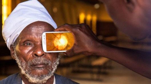معاینه چشم به صورت هوشمند//در حال کار