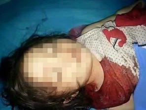 داعش یک دختر 2 ساله را اعدام کرد + عکس