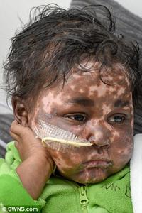 سرطان مرگبار خون و عارضه پوستی باور نکردنی در کودک 3 ساله + تصاویر