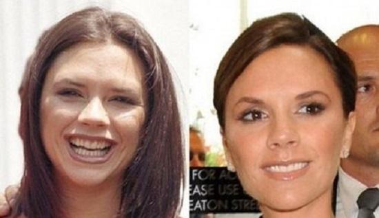 محسنی///////////معروف ترین افرادی که لبخندشان را جراحی پلاستیک کرده اند + تصاویر