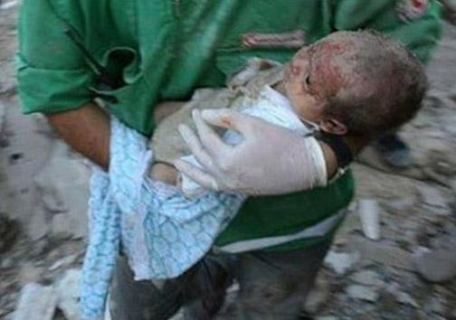 کودک غزهای یکسال بعد از معجزه+عکس