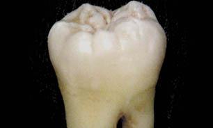 سفید کردن دندان و جرم گیری چه تفاوتی دارند؟