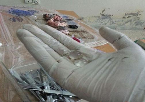 عکس یادگاری دانشجویان پزشکی با جسد در سالن تشریح!