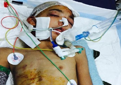 60 روز شکنجه دردناک کودک ۹ ساله در زابل! (+عکس)
