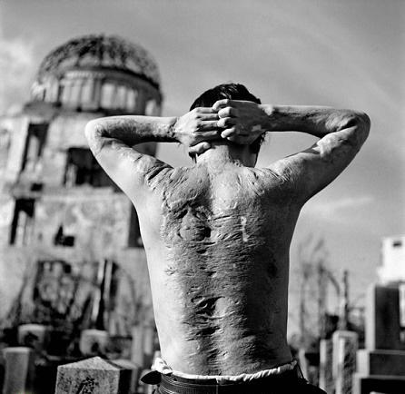 تاولهای ماندگار، سرطان و انقراض یک نسل؛ هیروشیما از نگاهی دیگر +تصاویر