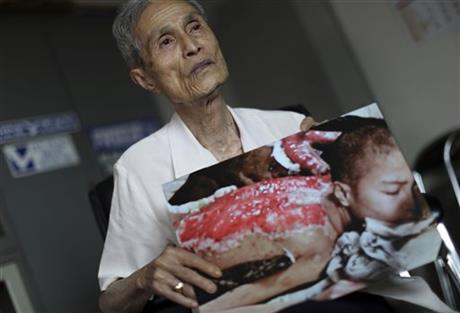 زخمهای هفتاد ساله بمباران ناگازاکی بر بدن یک مرد+تصاویر