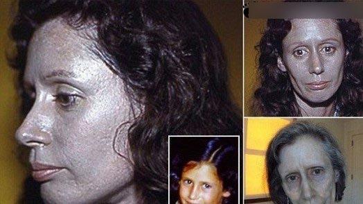 زنی با پوستان نقرهای