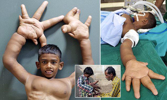 تلاش جراحان هندی برای کوچک کردن انگشتان غول آسای این کودک + تصاویر
