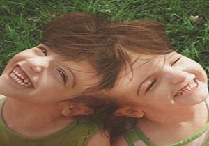 تواناییهای شگفتانگیز در این دو قلوی دختر به هم چسبیده + تصاویر