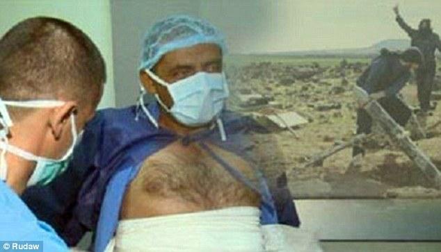 تصاویری تکان دهنده از کاربرد گاز خردل بوسیله داعش