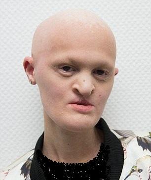 اختلال ژنتیکی نادر چهرهای غیرعادی در این زن ایجاد کرد +تصاویر