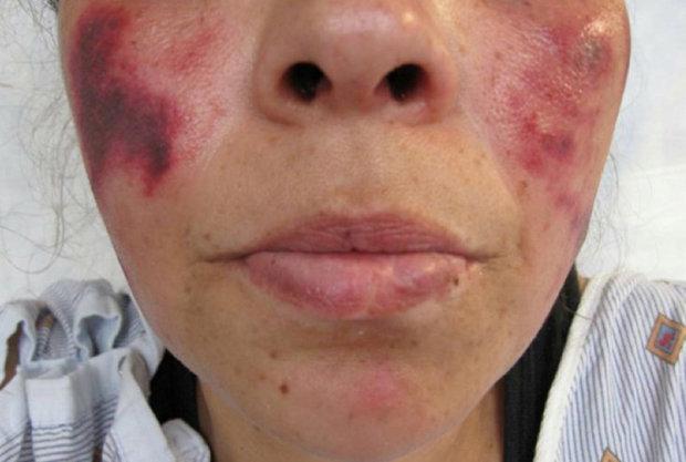 گندیدگی پوست زن انگلیسی بر اثر مصرف کوکائین + تصاویر