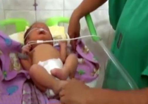 تولد نوزادی یا دوبینی + تصاویر
