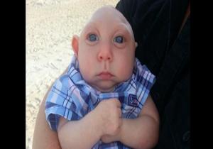 زندگی شگفت انگیز این نوزاد با جمجمهای غیرطبیعی + تصاویر