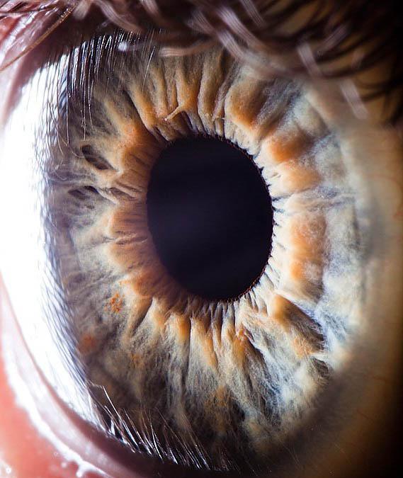 تصاویر بی نظیر میکروسکوپیک از چشم
