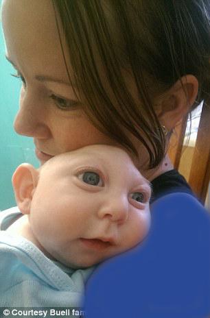 کودکی که با نصف سر یک ساله شد+ تصاویر