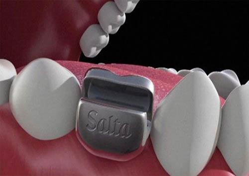 کاشت دندان هایی به شکل درربازکن ! + تصاویر