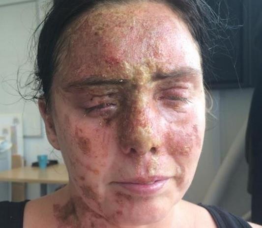 زن انگلیسی قربانی اسیدپاشی شد