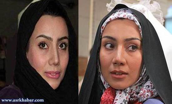 تفاوت چهره بازیگران زن ایرانی، قبل و بعد از عمل زیبایی +تصاویر