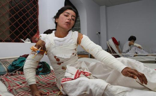 دختر جوان زنده زتده در آتش حسادت خواستگارش سوخت+ تصاویر