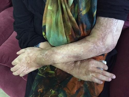 قربانیان اسیدپاشی چگونه روزگار می گذرانند؟ + تصاویر