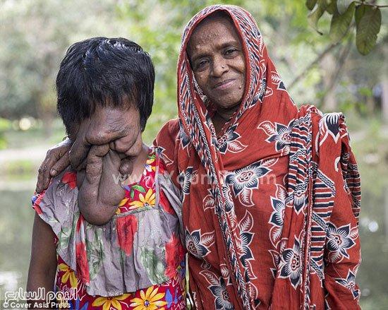 خدیجه، دختری بدون صورت که از سندروم نوروفیبروماتوز رنج می برد+تصاویر