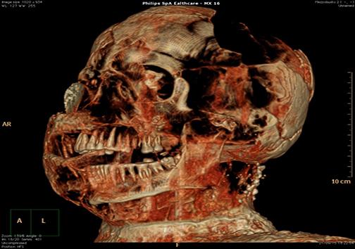 سیتیاسکن مومیاییِ قربانیان شهر تاریخی پُمپی + تصاویر