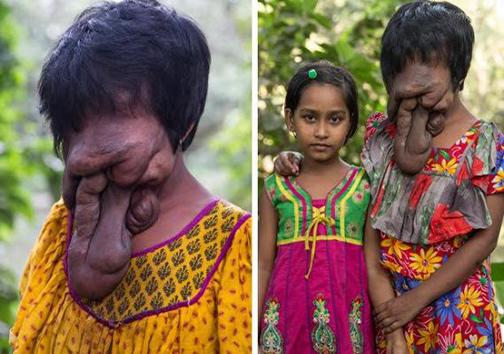 دختری که بدون چهره متولد شد +تصاویر