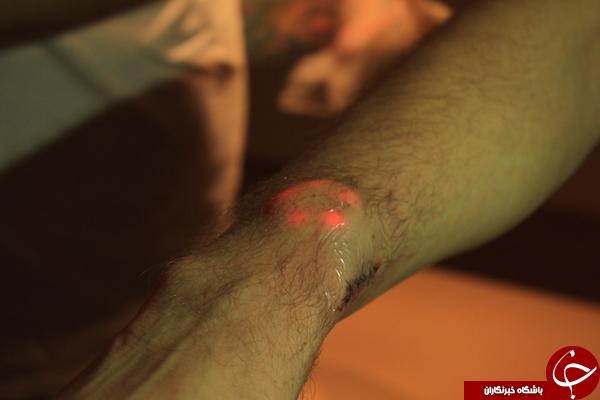 جراحی چراغ های LED زیر پوست +تصاویر 18+